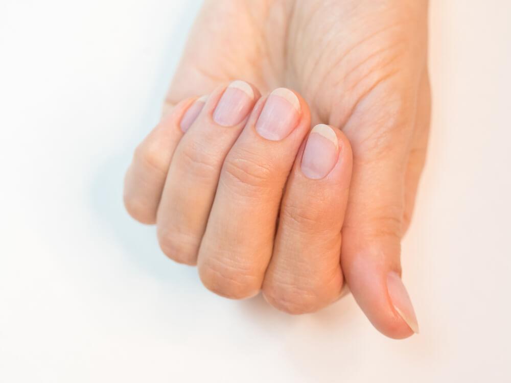 爪の状態でわかる体の健康